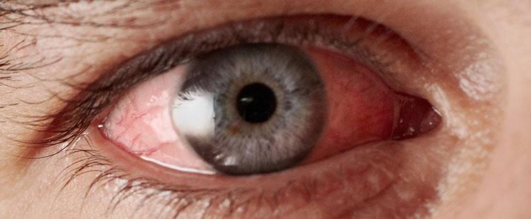 Чем лечить глаза грибок век