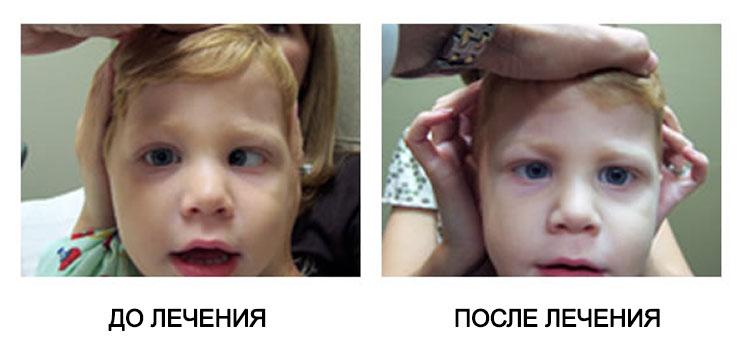 Как восстановить зрение после удара